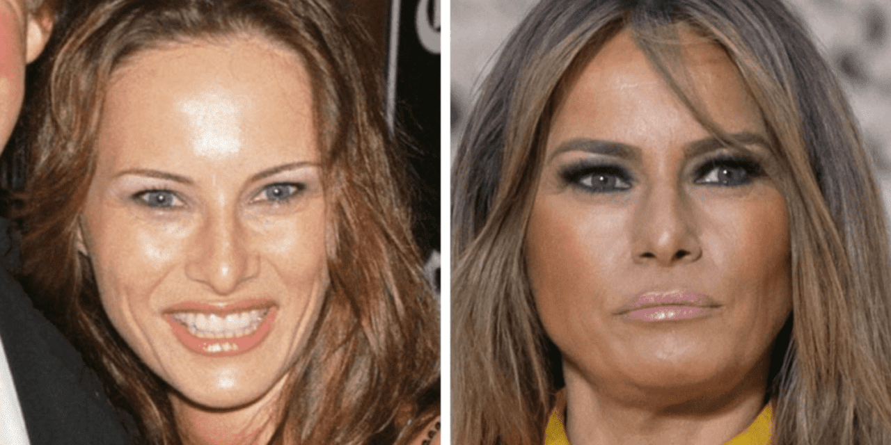 Melania Trump Says She's Had Zero Plastic Surgery and Is Against Botox, 'I Will Age Gracefully!'