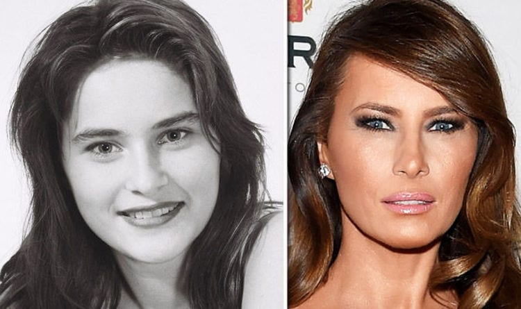 Melania Claims She's All Natural and Has Had No Plastic Surgery or Botox Injections
