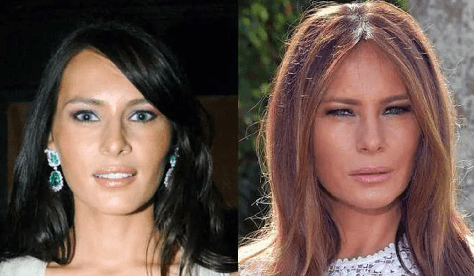 Melania Trump Claims She Hasn't Had Plastic Surgery and Is Against Botox, 'I Will Age Gracefully!'