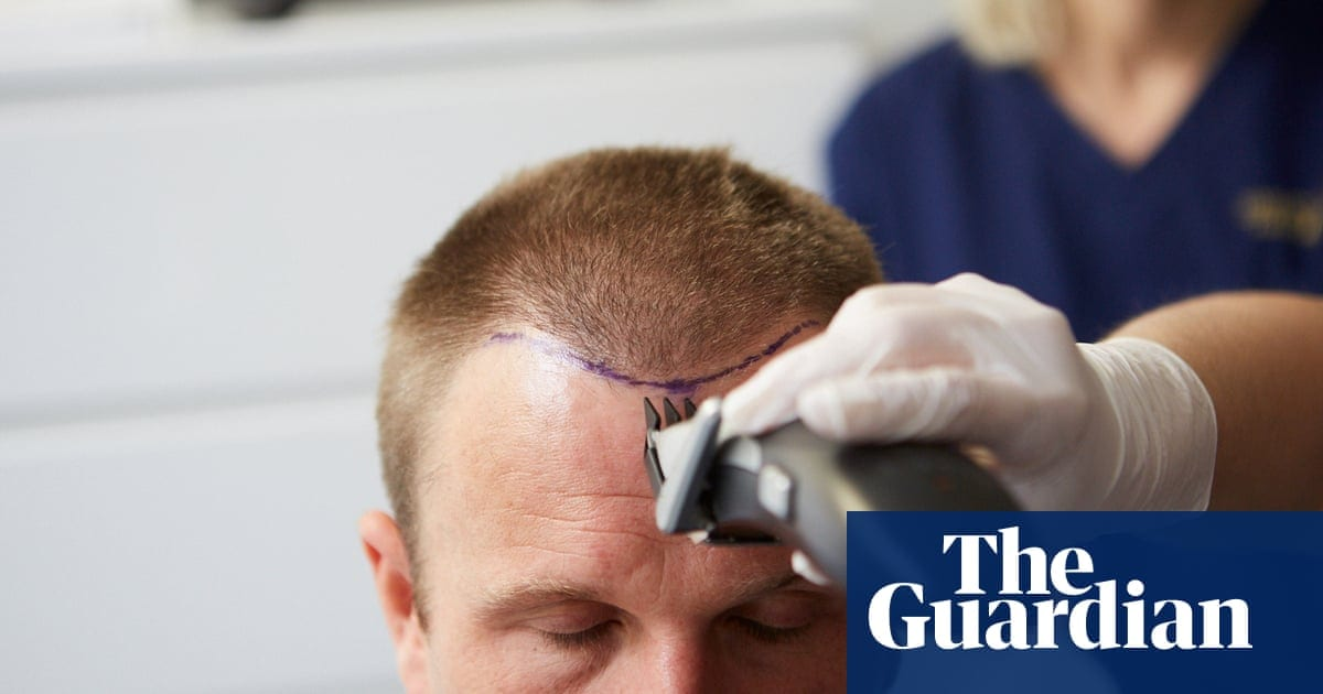 The hair wellness industry: 'Men said they would rather have a small penis than go bald' | Life and style | The Guardian
