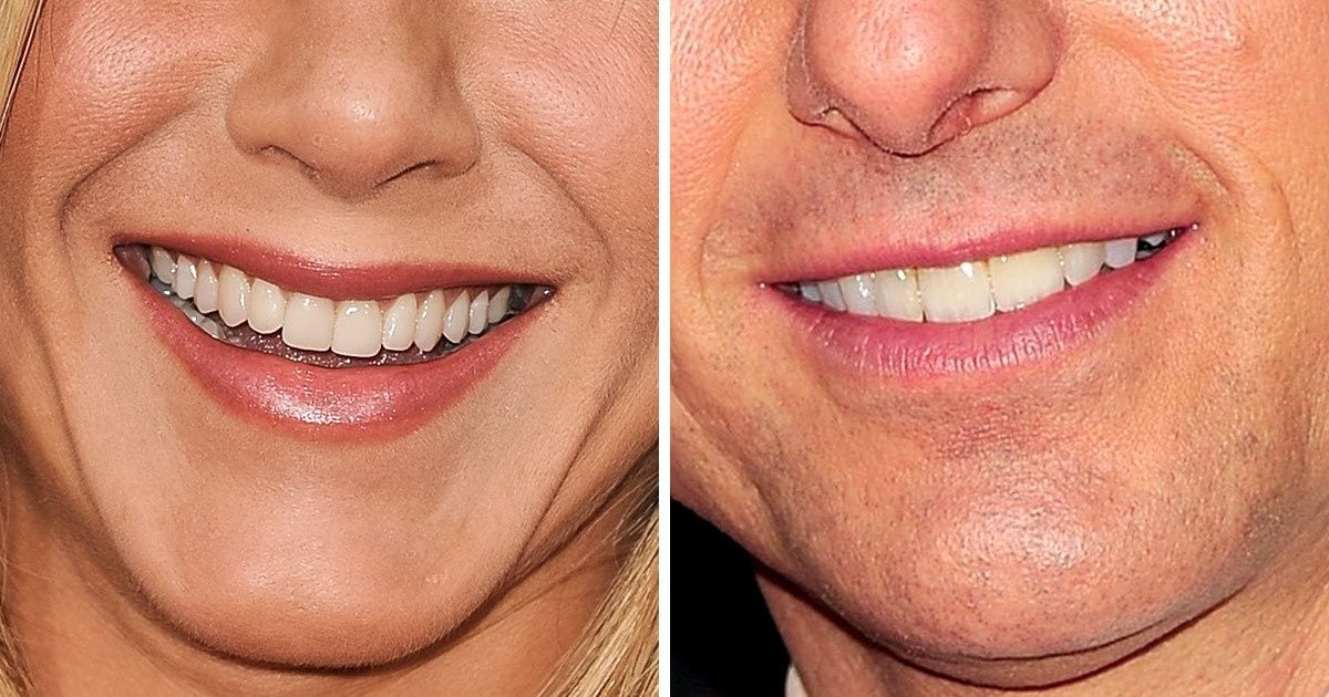 Test: Can You Guess the Celebrities Just by Their Smiles