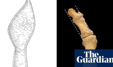 Medieval fashion for pointy shoes linked to rise in bunions | Archaeology | The Guardian